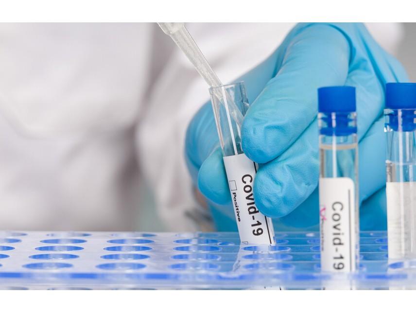 1629 нови случаи на коронавирус за денонощието